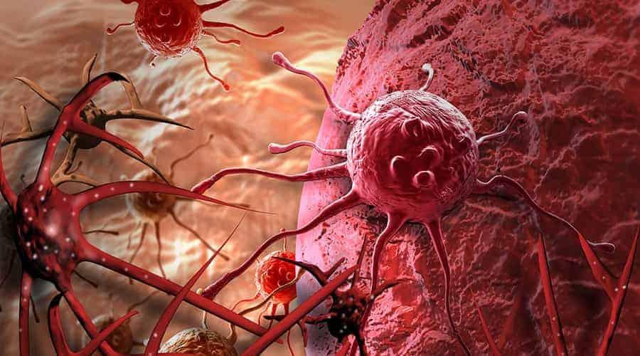cancer updatenews360
