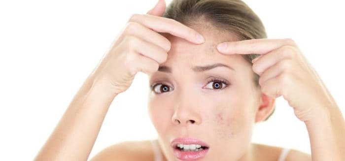 pimples-on-face updatenews360