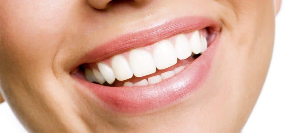 white-teeth-updatenews360