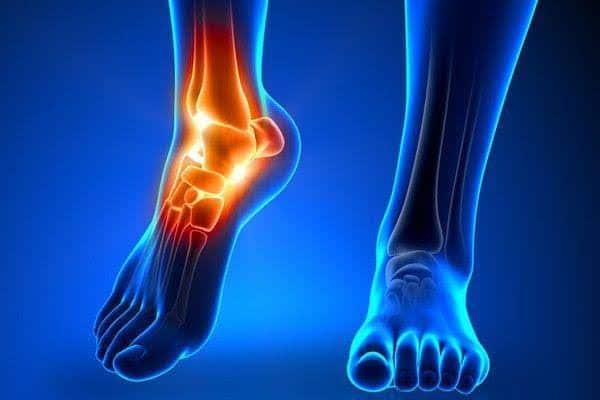 Leg Pain -Updatenews360