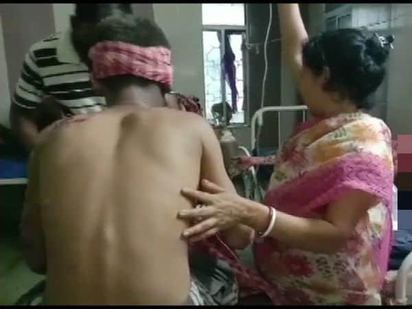 West_Bengal_crude_bomb_blast_BJP_workers_injured_updatenews360