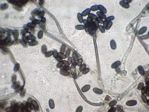 is mucromycosis aka black fungus is contagious