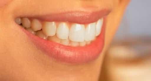 tips to get white teeth like pearl
