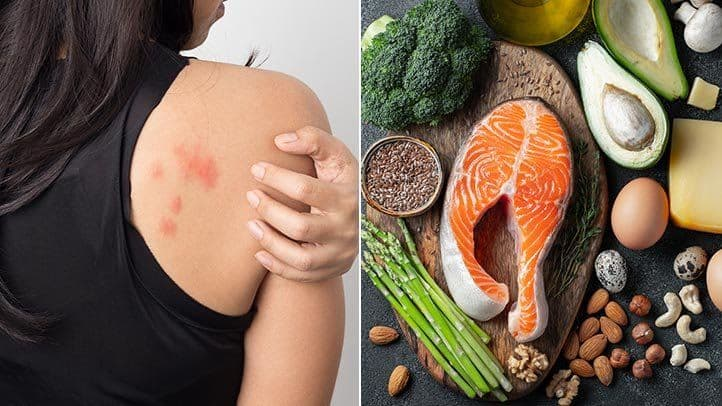 Foods you should avoid eating when suffering from eczema