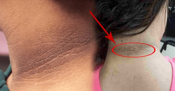 how to remove dark patches in neck