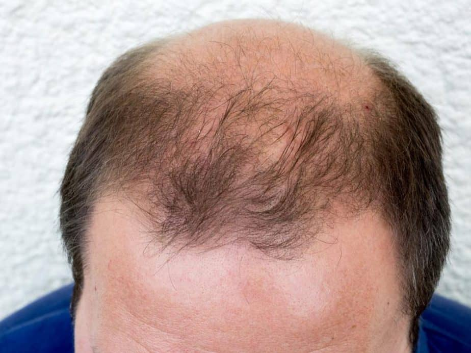 reasons for baldness in males