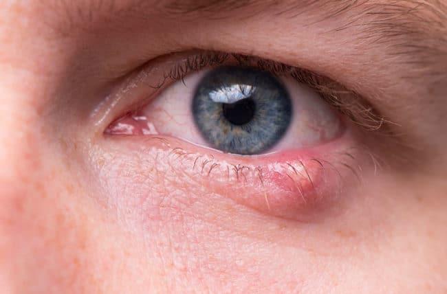 stye eye home remedy