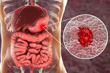 home remedies for ulcer pain