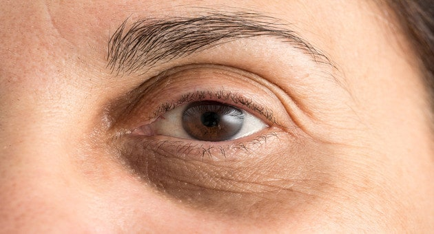 how to remove dark circles at home naturally